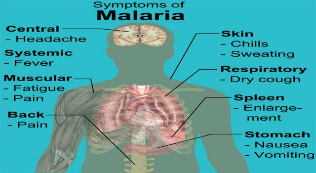 Signs And Symptoms of Malaria
