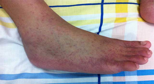 What Are The Symptoms of Chikungunya