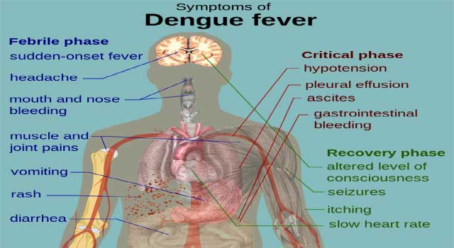 What Is Dengue Fever And Symptoms