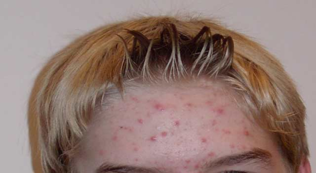 Main Cause of Acne in adults