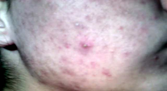 Best Treatment For Acne Scars At Home