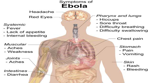 What Are The Symptoms of Ebola Virus