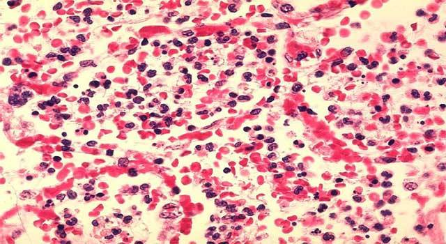 What Are Different Types of Leukemia
