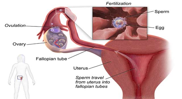 How To Treat Painful Ovulation