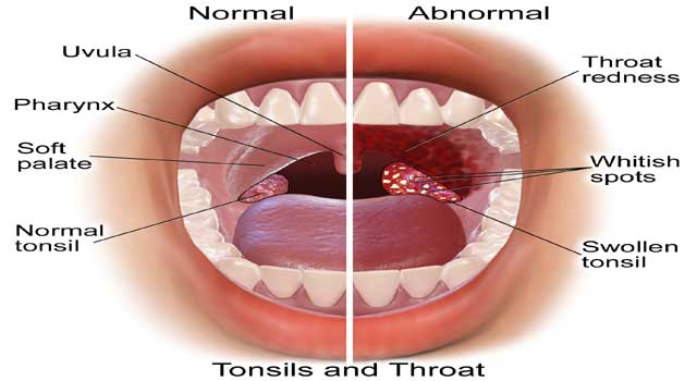 Best Home Remedies for Sore Throat