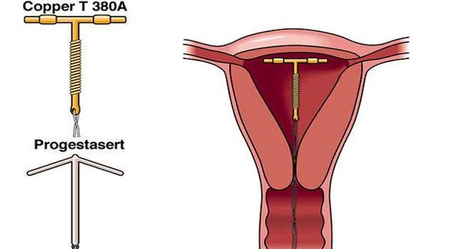 What is Copper-T – Intrauterine Device