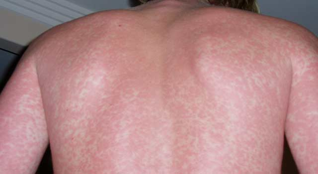 How to Get Rid of Eczema Scares