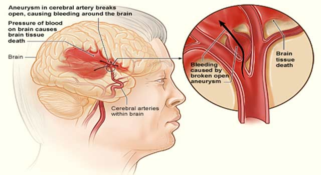 Brain Aneurysm and its Causes