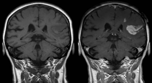 Early Signs and Symptoms of Brain Tumor