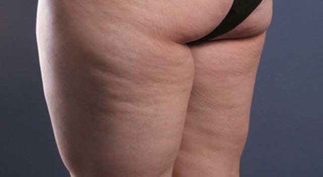 Get Rid of Cellulite on Thighs