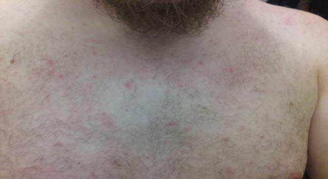 Get Rid of Heat Rash on Face, Chest and Thighs