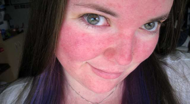 Get Rid of Rosacea on Your Face