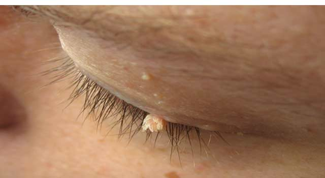 Natural Home Remedies for Wart Removal