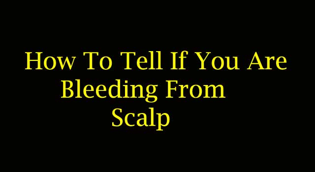 How to Tell If You Are Bleeding From the Scalp
