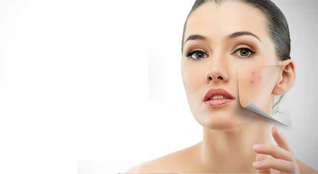 How to Get Rid Of Skin Pigmentation