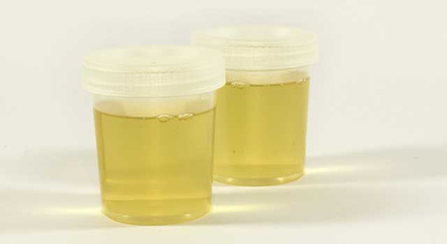 How to Mask THC in Urine
