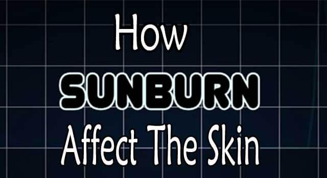 How Sunburn Affects The Skin
