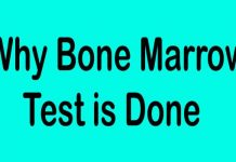 Why Bone Marrow Test Is Done for Anemia and Other Disease